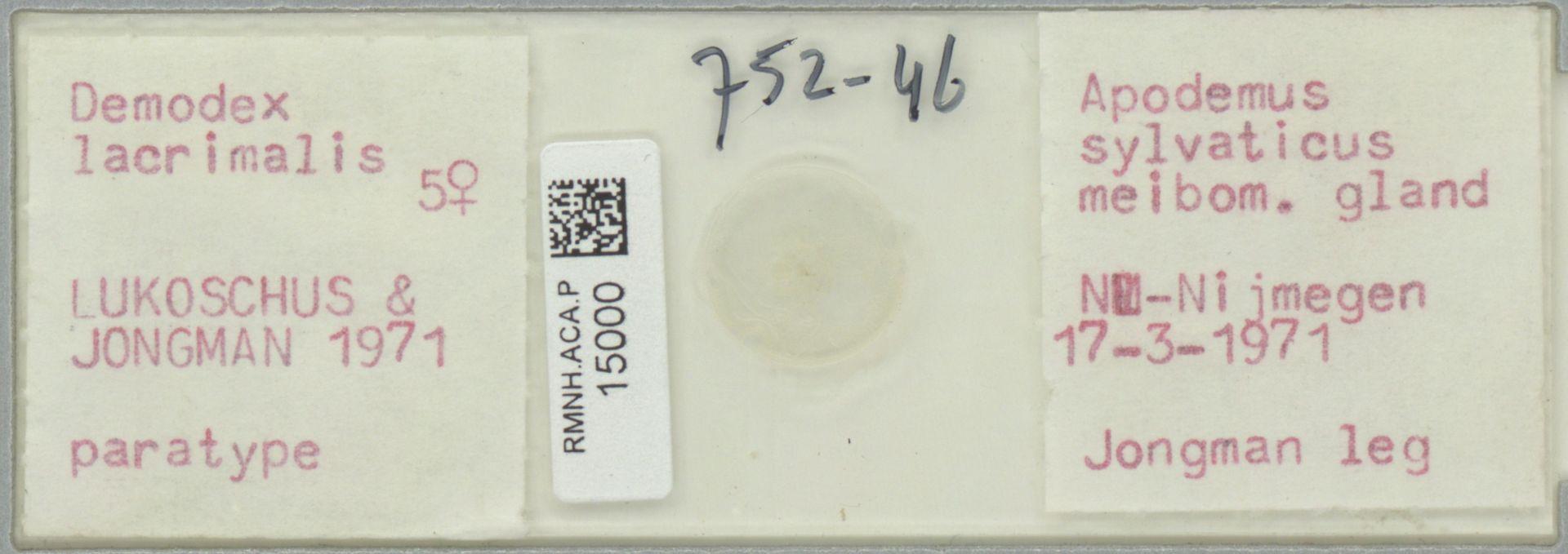 RMNH.ACA.P.15000 | Demodex lacrimalis Lukoschus & Jongman, 1971