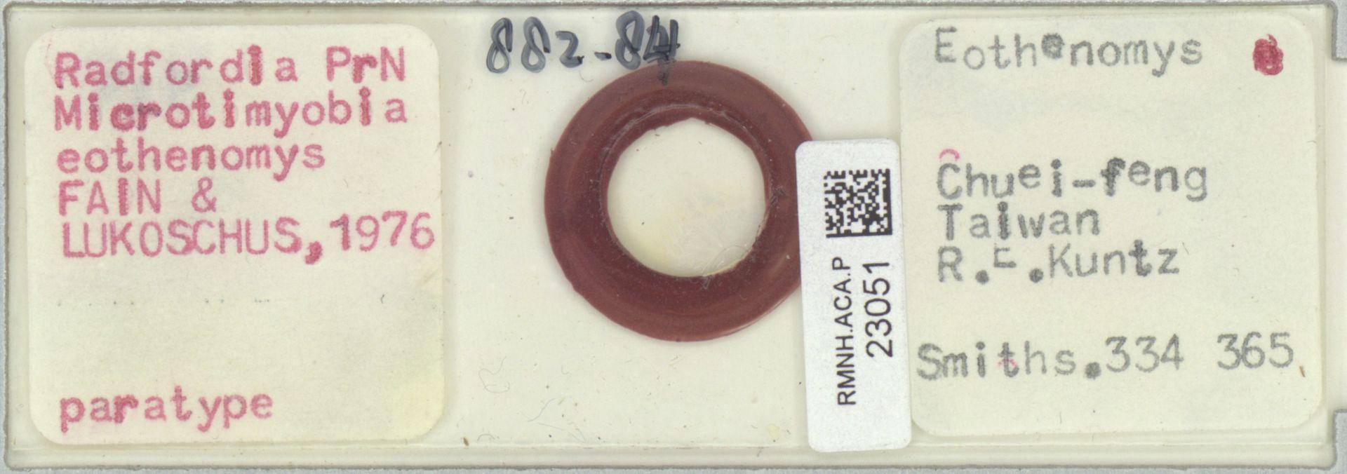 RMNH.ACA.P.23051 | Radfordia (Microtimyobia) eothenomys Fain & Lukoschus, 1976
