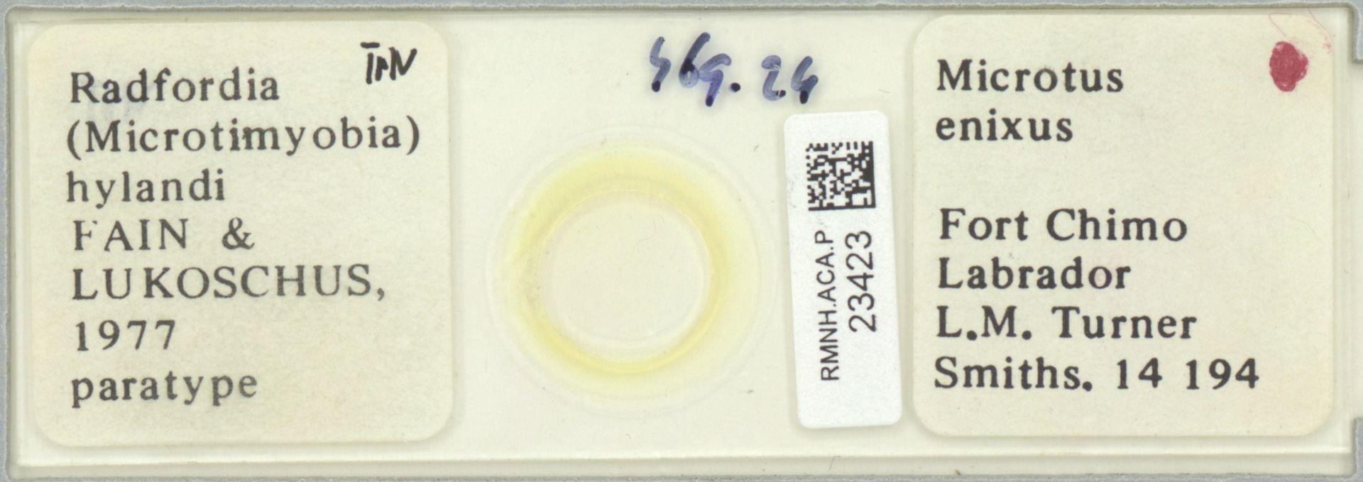 RMNH.ACA.P.23423   Radfordia (Microtimyobia) hylandi Fain & Lukoschus 1977